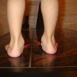 Плоско вальгусная деформация стоп у детей Лечение