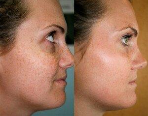 Ионный прибор SKINREVO для чистки кожи лица и тела